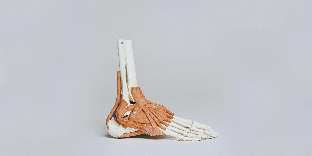 Fratture di calcagno