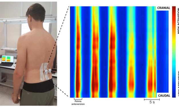 Bando per la Ricerca Scientifica AIFI PVdA 2018: pubblicato il paper del progetto vincitore su BMC Musculoskeletal Disorders